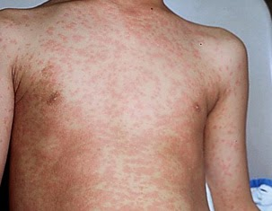 DOH: Adults are Also Prone to Measles